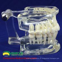 DENTAL11 (12571) Humano Adulto Natural Tamanho Transparente Padrão Dental Ensinar Modelos