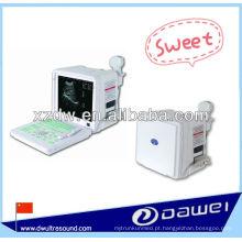 Máquina diagnóstica portátil do ultra-som de 2 d