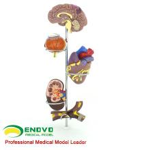 HEART21 (12497) Modelo Médico Anatômico de Hipertensão Humana