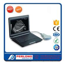 Full Digital Ultrasound Scanner (PT3000D1)