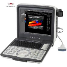 MT Medical High Specification Digital 3D/4D Color Doppler Veterinary Portable Ultrasound Scanner