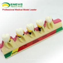 Супер сентябре 12585 модели классификации Пародонтальных 2 раза в натуральную величину, заболевания зубов