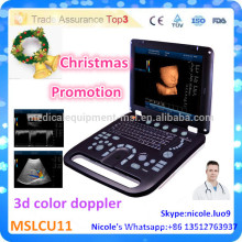 Promotion de Noël! CU11-i Nouvelle machine à ultrasons Doppler couleur 3D avancée et image 3d ultramoderne couleur doppler ultround