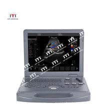 Portable Baby Scanner Echo Ultrasound Ultrasonography Machine  Ultrasound Machine 4D Color Doppler