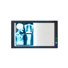 High quality double medical led x ray negatoscope film viwer box from China