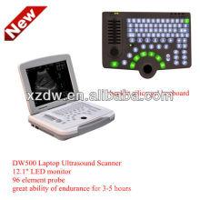 Горячие продажа б/Вт ноутбук ультразвуковой машины&ультразвук DW500