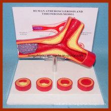 Menschliche Arterie Atherosklerose und Thrombose Modell