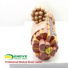 HEART17 (12493) modèle anatomique médical anatomique élargi de muscle lisse