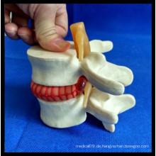 Vergrößern Demonstration Lumbal Disc Herniation Model