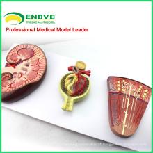 KIDNEY06 (12435) Medical Science Model Secção dos Rins, Néfrons e Glomérulos, Modelos de Anatomia> Modelos Urinários 12435