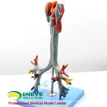 LUNG05(12502) 2 части в натуральную величину гортани ,трахеи & Бронхиальное дерево Анатомия модели > респираторных