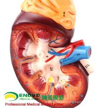 VENDA 12434 Ampliar Modelo Rim, 2 Part, Anatomy Urinary Models