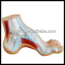 Pé arqueado ISO, modelo de pé normal e plano, modelo de pé de anatomia