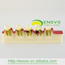 EN-M8 Modèle de développement de maladies dentaires / de maladies dentaires