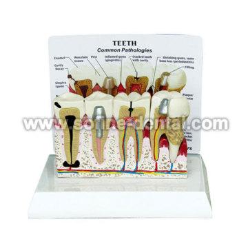 Teeth Model With Description Plate