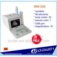 best portable ultrasound machine for people & usb ultrasound probe price (DW-330)