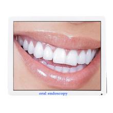 cámara intraoral dental del equipo del endoscopio para blanquear los dientes