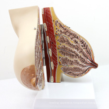 ANATOMY22 (12460) Female Breast Section Model in Lactating Breast Model, 2 Parts, Anatomy Models > Female Models