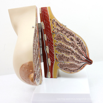 ANATOMY22 (12460) Female Breast Section Model in Lactating Breast Model, 2 Parts, Anatomy Models > Female Models