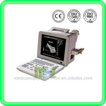 Escáner de ultrasonido de precio MSLPU01