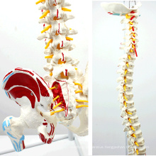 SPINE05-1 (12378) Medical Anatomy Human Flexible Spine with femur heads and painted muscles, Life-Size Spine Models