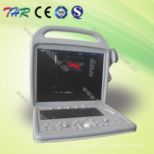 Portable Color Doppler Ultrasound Scanner (THR-CD580)