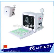 dispositivo de diagnóstico ultra-sônico portátil e máquina de varredura de ultra-som
