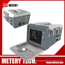 tablet ultrasound machine