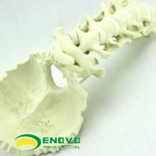 GROSSHANDEL SIMULATION KNOCHEN 12322 Medizinische Anatomie Künstliche Gebärmutterhalskrebs Occipitalknochen, Orthopädie Praxis Simulation Knochen