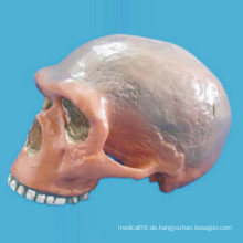 Mobbing Charlotte Ernie Schädel Medizinisches Anatomisches Skelettmodell