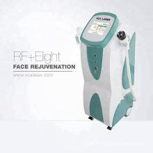 Remoção da veia do laser de Elight rf ipl