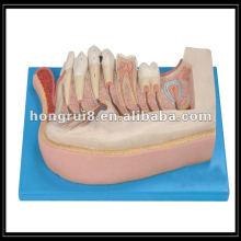 Modelo de dentes de crianças ampliadas ISO, mandíbula inferior de uma criança de 12 anos de idade HR / B10002