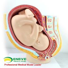 VENDA 12448 primeira qualidade gravidez pelve - 40 meses infantil, anatomia modelos gravidez pelve com feto maduro