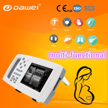 DW-600 échographe portable prix et mouton échographie grossesse scanner