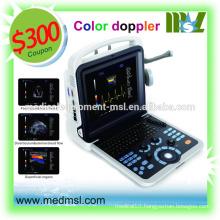 china portable ultrasound machine price, MSLCU28, portable, color ultrasound!