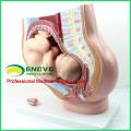 ANATOMY11 (12449) Medianschnitt Menschlicher weiblicher Beckenabschnitt mit 9-monatigem Säugling
