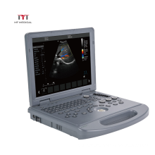 Clear Imaging 3D/4D Portable Color Doppler Echocardiography Ultrasound scanner machine price for Pregnancy