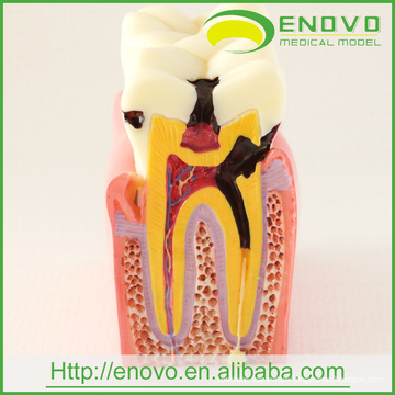 EN-M2 Dental Pathological Teeth Model of 6Ttimes Caries Comparation