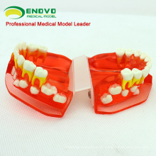 DENTAL16 (12596) Modelo dentário de desenvolvimento dentário da faixa etária dos 3 aos 6 anos de idade