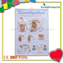 Graphique médical en plastique gaufré pour patients avec constipation