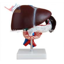 ISO Anatomisches Lebermodell mit Bauchspeicheldrüse und Duodenum Modell