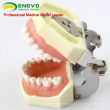 DENTAL27(12609) лечение заболеваний пародонта учебные модели челюсти