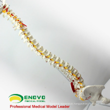 SPINE05 12377 Medical Science Human Flexible Spine Painted Muscles, Life-Size Spine Models