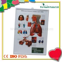 Unterschied zwischen Asthma und COPD 3D Anatomische Diagramm Großhandel