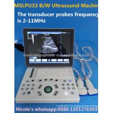 MSLPU33-i fréquence de 2 à 11 MHz Fonctionnement de l'image B / W machine d'échographie portable / scanner à ultrasons portable