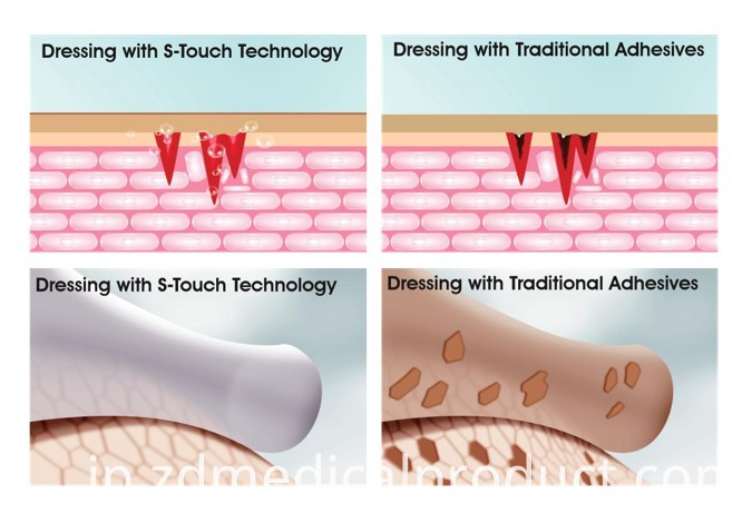 Silicone Foam Dressing