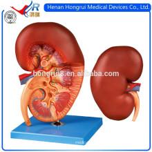 ISO Advanced Medical Kidin Model
