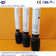 Вакуумные пробирки для сбора крови Трубка ЭПР (ENK-CXG-041)