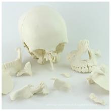 SKULL12 (12392-1) Ciência Médica 22parts Adulto Humano Crânio Modelo