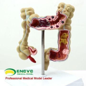 INTESTINE01 (12533) Modelo anatômico dos intestinos da ciência médica